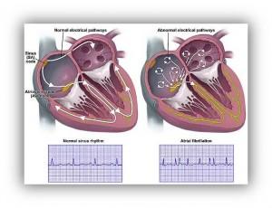 Atrial fibrilation. pic 1