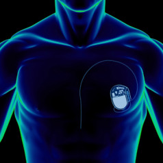 Heartbeat powered pacemaker