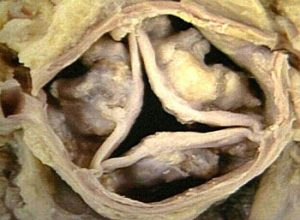 calcified-aortic-valve-stenosis